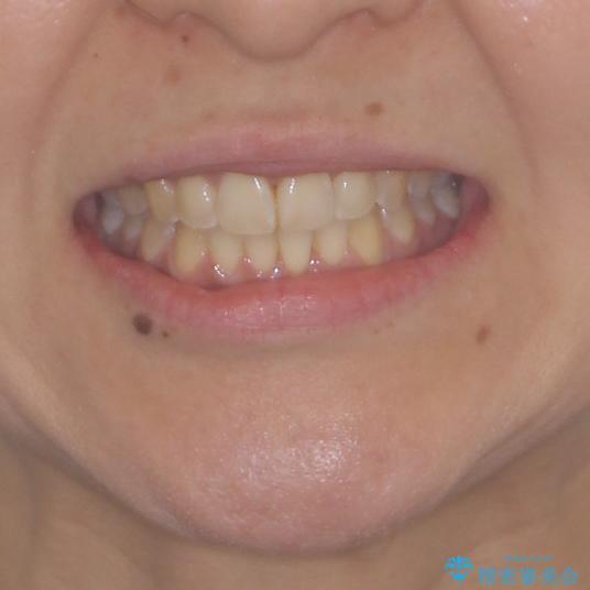 インビザラインによる狭窄歯列の拡大矯正 の治療後(顔貌)