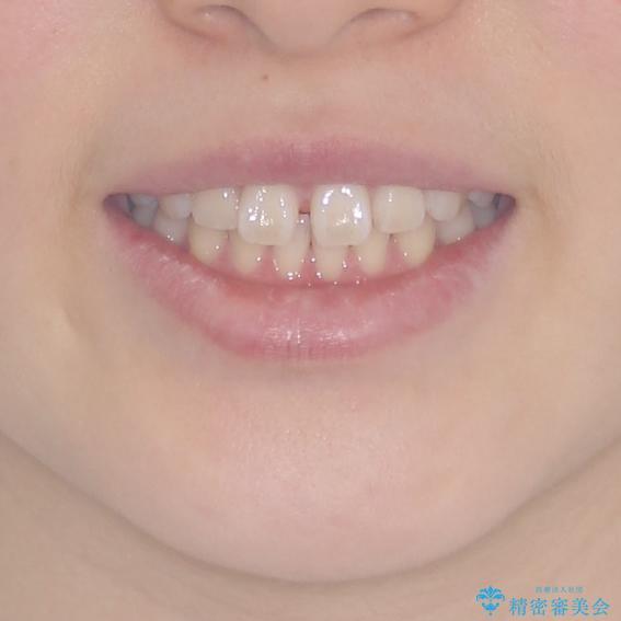 インビザラインによるすきっ歯の改善の治療前(顔貌)