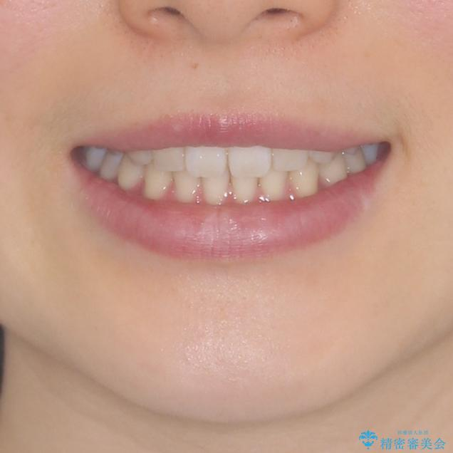 インビザラインによるすきっ歯の改善の治療後(顔貌)