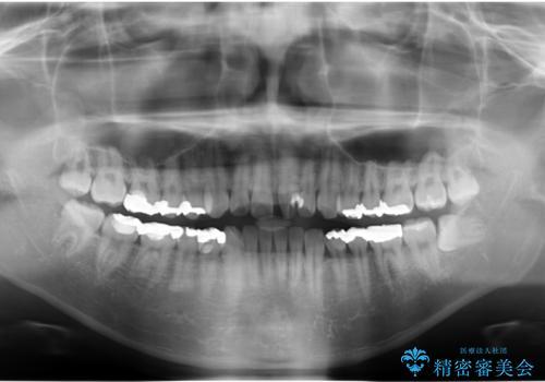 前歯のねじれ 上だけ部分矯正でコストダウンの治療前