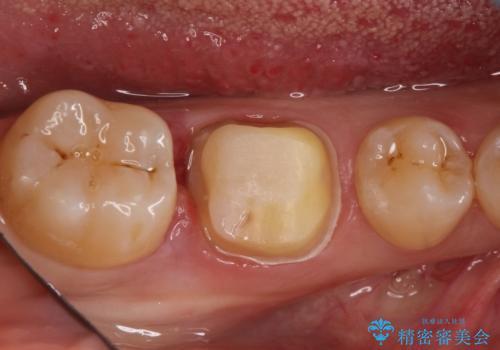 奥歯が痛い。根管治療~オールセラミッククラウンの治療中
