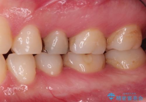 昔の詰め物のなかで広がる虫歯。セラミックインレーの治療前