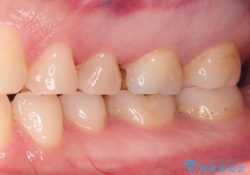 昔の詰め物のなかで広がる虫歯。セラミックインレーの治療後