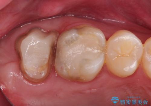 歯肉に埋もれたマージンライン 奥歯の被せものの治療中
