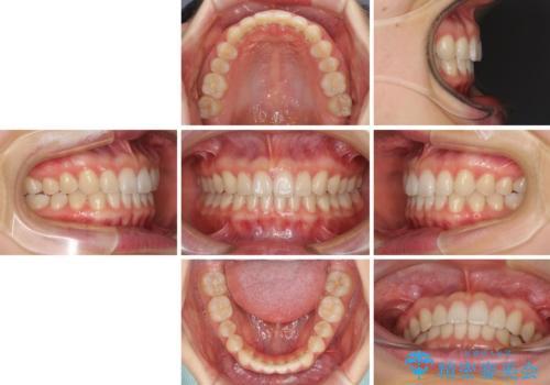 インビザラインによるすきっ歯の改善の治療後