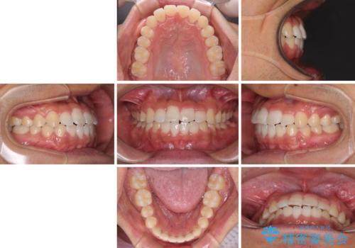 美容歯科でも断られた 著しい前歯のクロスバイトをワイヤー矯正で改善の治療後