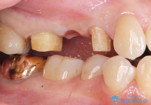 虫歯による歯の喪失 ジルコニアブリッジの製作の治療中