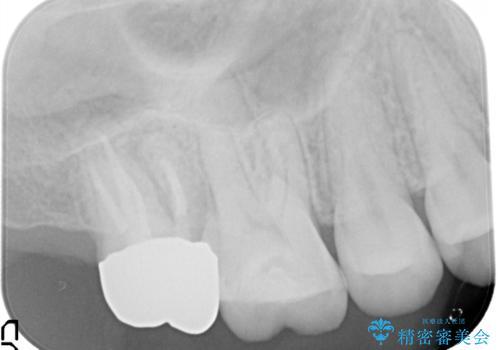 歯肉に埋もれたマージンライン 奥歯の被せものの治療後
