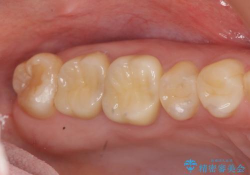 [フルジルコニアクラウン] 老朽化した銀歯を白くの症例 治療後