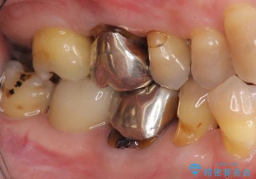 [銀歯の下の虫歯 ] 根管治療を伴う虫歯治療の治療後