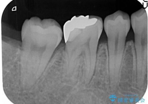 奥歯が痛い。根管治療~オールセラミッククラウンの治療前