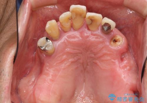 [インプラントオーバーデンチャー] インプラントで奥歯を支える部分床義歯の症例 治療前