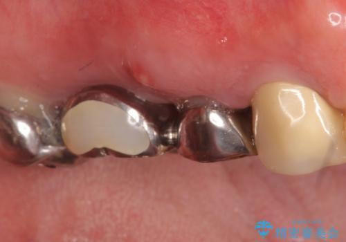 インプラント(ストローマン) 抜歯後の欠損補綴の治療前