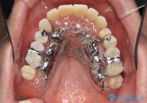 [インプラントオーバーデンチャー] インプラントで奥歯を支える部分床義歯の症例 治療後