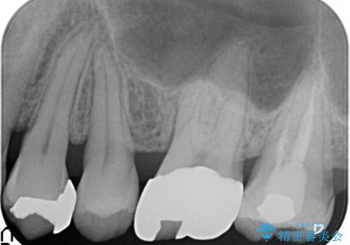 目立つ金歯を自然な色のオールセラミックへの治療前