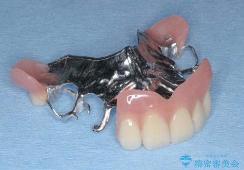 [インプラントオーバーデンチャー] インプラントで奥歯を支える部分床義歯の治療後