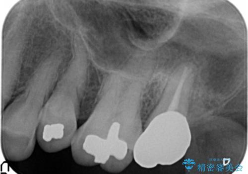 歯周外科で整備する安定したクラウン環境の治療後