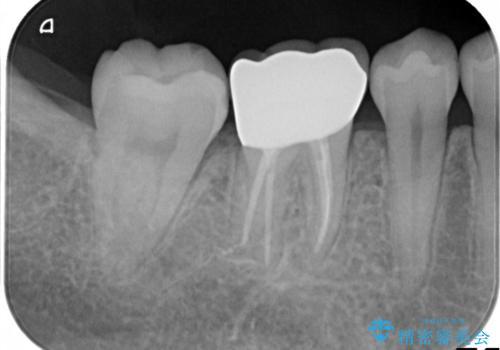 奥歯が痛い。根管治療~オールセラミッククラウンの治療後