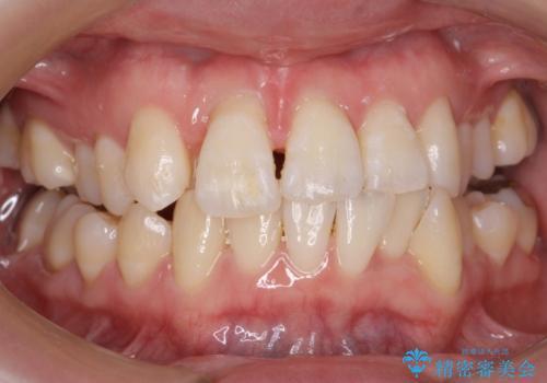 前歯がグラグラする 他院で、もうできることがないと言われたの治療前