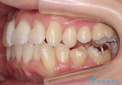 前歯がグラグラする 他院で、もうできることがないと言われたの症例 治療前