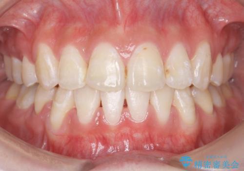 八重歯の治療 仕上がり重視での症例 治療後