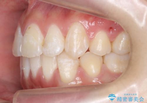 八重歯の治療 仕上がり重視での治療後