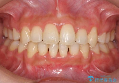 20代女性 口元を下げたい 前歯のがたつきの症例 治療後