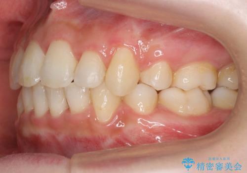 20代女性 口元を下げたい 前歯のがたつきの治療後