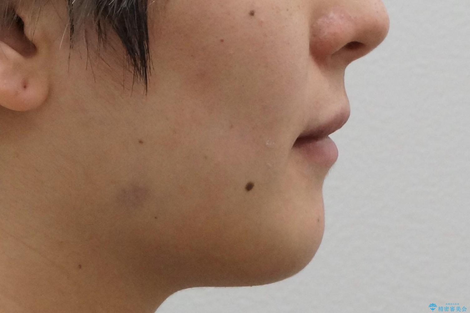 八重歯の治療 仕上がり重視での治療後(顔貌)