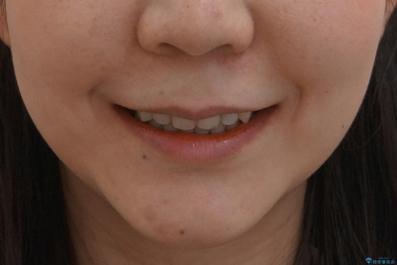20代女性 口元を下げたい 前歯のがたつきの治療後(顔貌)
