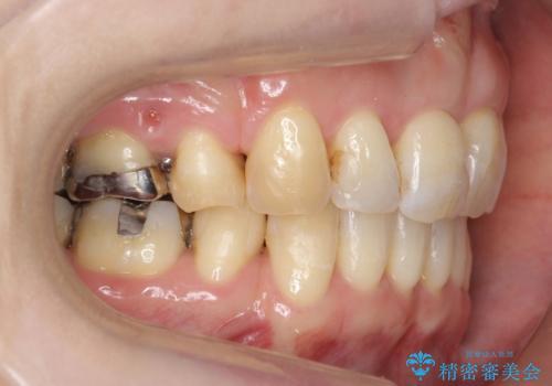 40代の矯正 出っ歯、歯のがたがたの治療後