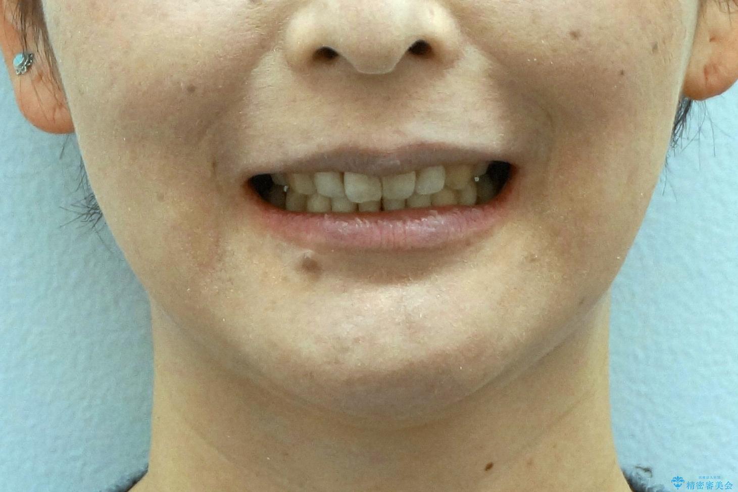 40代の矯正 出っ歯、歯のがたがたの治療後(顔貌)