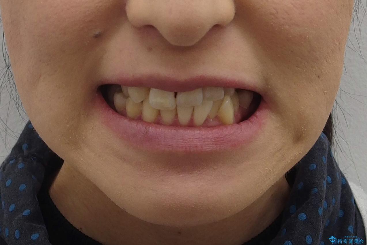 前歯がグラグラする 他院で、もうできることがないと言われたの治療前(顔貌)