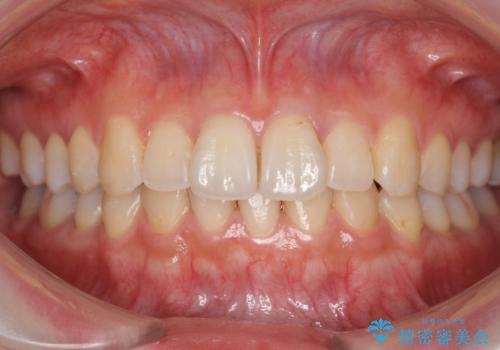 軽度の前歯のがたつき 下の前歯が生まれつき少ないの治療後