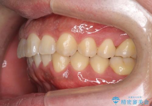 前歯のねじれを 1年かけずに矯正 インビザラインの治療後