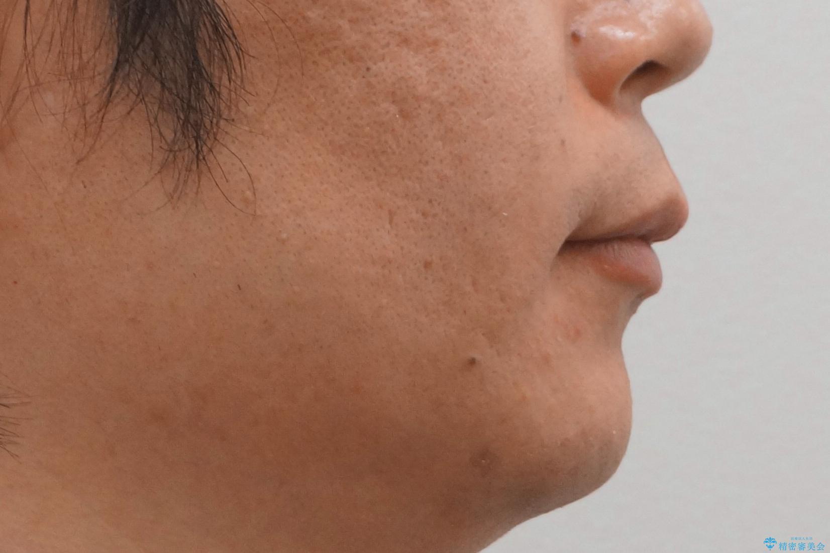 前歯のねじれを 1年かけずに矯正 インビザラインの治療後(顔貌)
