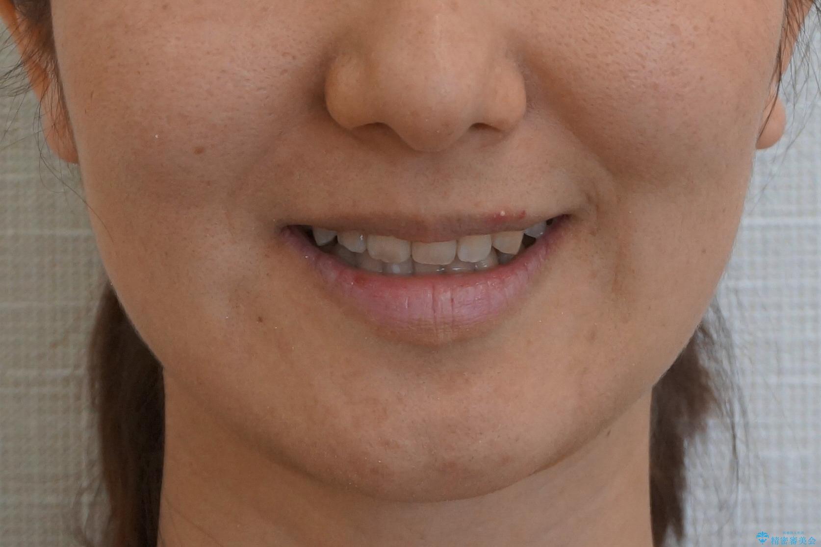 30代女性 残った乳歯を抜いてスペースを閉じる矯正 前歯のねじれの治療後(顔貌)
