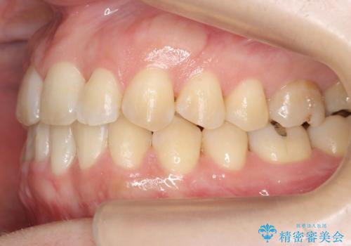 30代女性 残った乳歯を抜いてスペースを閉じる矯正 前歯のねじれの治療後