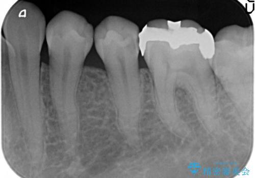 セラミックインレー 他院にて歯の神経治療が必要と言われた虫歯の治療前