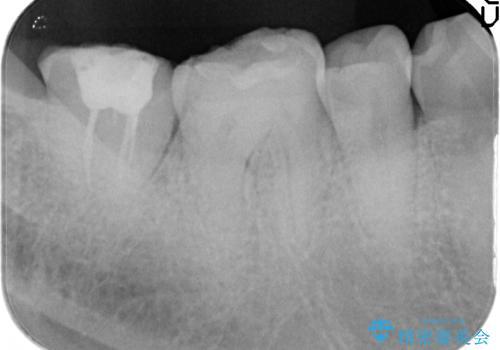 歯ぎしりによる異常に低い歯冠高径  歯周外科による解決の治療前