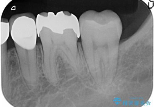 臼歯部 長期的に予知性の高いゴールドインレーへの治療前