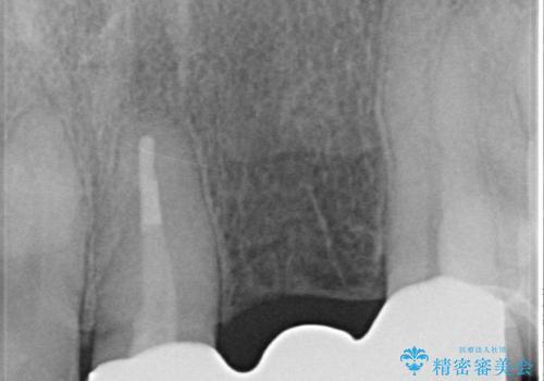 オールセラミッククラウン 前歯のブリッジ 気になる見た目の改善の治療後