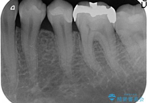 セラミックインレー 他院にて歯の神経治療が必要と言われた虫歯の治療後