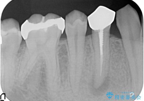 オールセラミッククラウン 咬むと痛む歯の根管治療~補綴の治療前