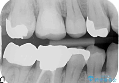 銀歯の下が虫歯 セラミックインレーにの治療後
