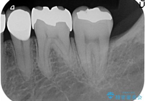 臼歯部 長期的に予知性の高いゴールドインレーへの治療後