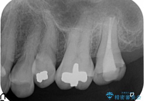 歯周外科で整備する安定したクラウン環境の治療前