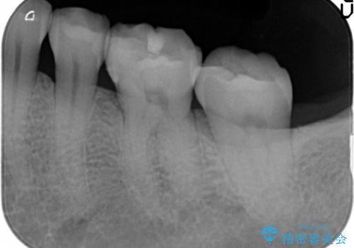 目立つ銀歯を全て白く セラミックで虫歯治療の治療後