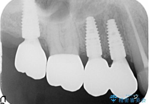 [強すぎる咬合力] 破折歯のインプラントによる咬合機能回復治療の治療後