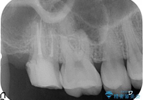 オールセラミッククラウン 他院にて抜歯と言われた歯の治療の治療中